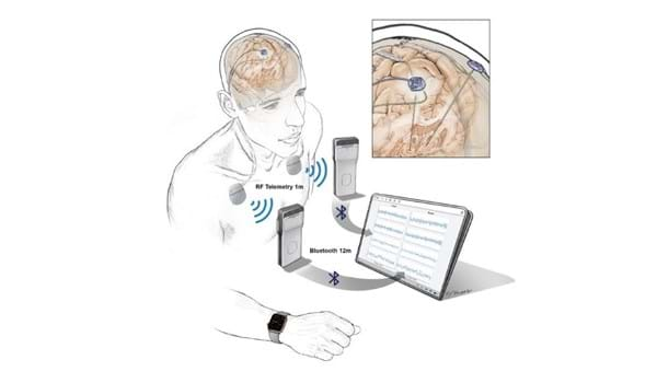 Open-source technology platforms will support a new generation of neurostimulation devices that not only provide stimulation to the brain but also sense, record, and stream brain activity.